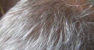 Why is your hair greying? What do recent discoveries say!